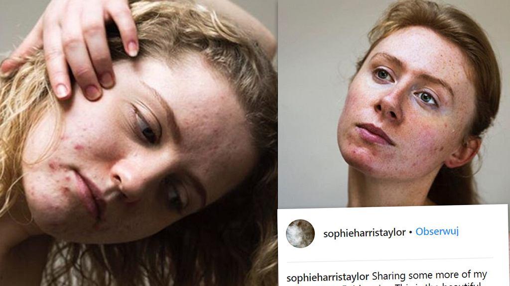 Skin positive