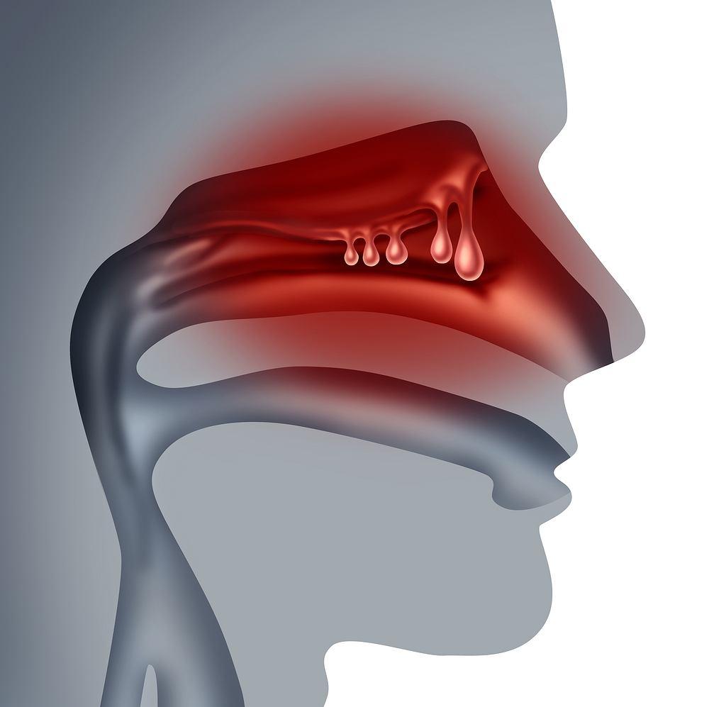 Polipy w nosie powstają wskutek zmian zapalnych lub alergicznych błony śluzowej nosa. Są mniejszymi bądź większymi naroślami, które mogą mieć zarówno kilka milimetrów, jak i wypełniać całą jamę nosową.