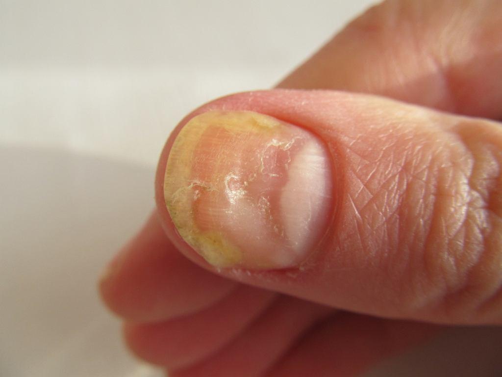 Żółte paznokcie mogą mieć związek m.in. z grzybicą