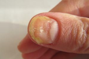 Żółte paznokcie - przyczyny, jak leczyć, zapobieganie