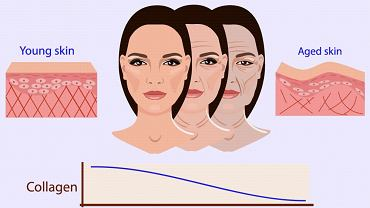 Zanikanie kolagenu skutkuje pojawianiem się zmarszczek oraz przyspiesza proces starzenia się skóry