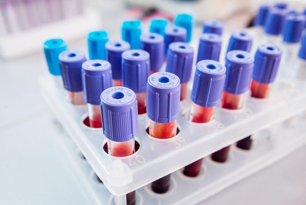 Jak zbadać konflikt serologiczny? Najważniejsze jest, by każda ciężarna do 12. tygodnia ciąży miała oznaczoną grupę krwi, czynnik Rh oraz (jeśli ma krew Rh-) poziom przeciwciał atakujących czerwone krwinki płodu