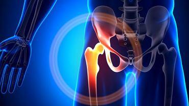 Zmiany chorobowe najczęściej pojawiają się w obrębie stawu łokciowego, barkowego lub biodrowego