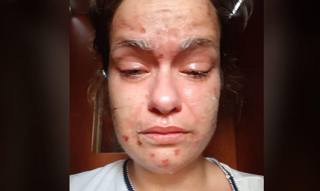 Pasażer 'homofobusa' psiknął jej gazem w oczy. Chciała zamazać obraźliwe napisy i zwrócić uwagę, że za głośno sączy swój jad