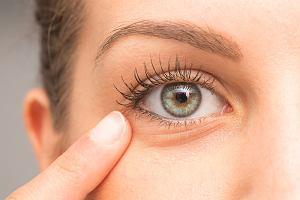 Sińce pod oczami: czy to objaw choroby?