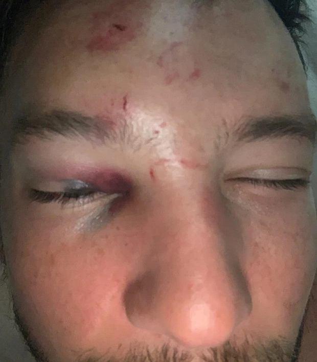 Piłkarz Chelsea pobity przez sześciu mężczyzn. Podrywał dziewczynę w nocnym klubie