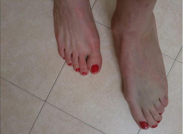 Soczi 2014. Stłuczona stopa Justyny Kowalczyk