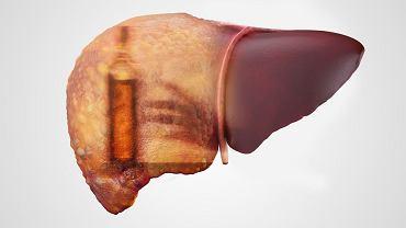 Niewątpliwie marskość wątroby może być jedną z konsekwencji choroby alkoholowej. Zarazem: uszkodzenie tego narządu bywa wynikiem działania innych czynników, choćby wirusów