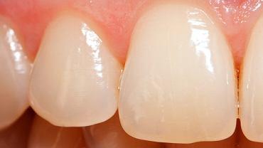 Szkliwo zębów jest niezwykle twarde