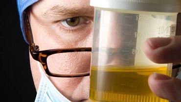 W oparciu o barwę, osad oraz poziom białka w moczu można ocenić pracę całego układu moczowego