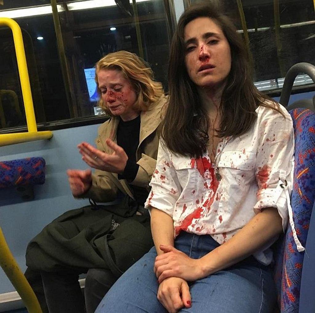 Kobiety zostały pobite