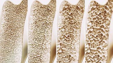 Osteoporoza to choroba, która  wiąże się z postępującym ubytkiem masy kostnej, osłabieniem struktury przestrzennej kości i zanikiem tkanki kostnej, a co za tym idzie ze zwiększoną podatnością na złamania.