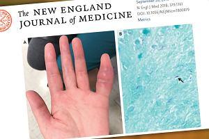 42-letnia kobieta zgłosiła się do lekarza ze spuchniętym palcem. Okazało się, że ma gruźlicę