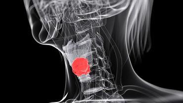 W obrębie krtani pojawia się wiele zmian patologicznych. Nie muszą jednak zaraz oznaczać raka