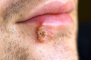 HSV wirus opryszczki pospolitej