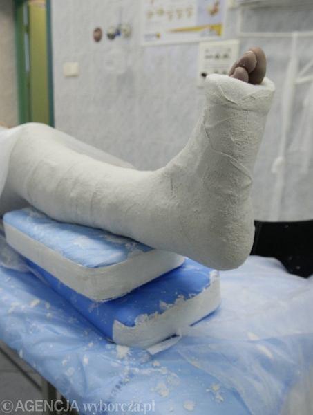 Piesi powinni zachować ostrożność. Ślisko na jezdniach i chodnikach grozi złamaniem nogi