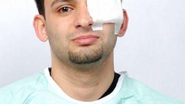Jeśli już doznasz urazu oka, skonsultuj się z okulistą nawet wtedy, gdy nie odczuwasz bólu