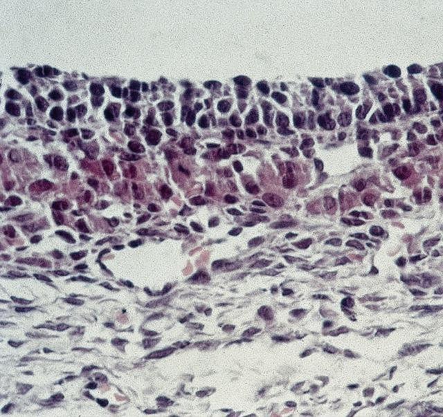 Zespół policystycznych jajników. Zdjęcie z mikroskopu optycznego pokazujące przekrój przez błonę śluzową jajowodu u pacjentki dotkniętej tą chorobą, zwaną też zespołem Steina-Leventhala. Dysfunkcja ta prowadzi do hirsutyzmu i wykształcenia męskich cech narządów płciowych, upośledzenia struktury jajników, bezpłodności