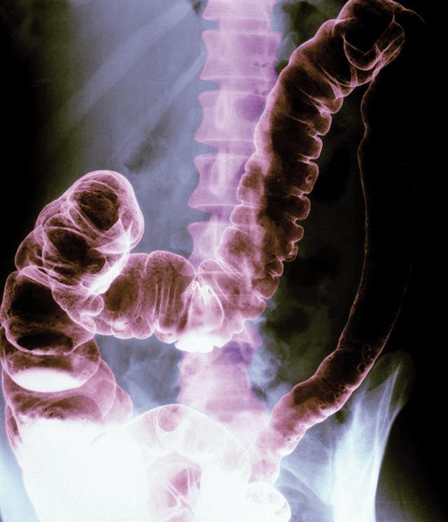 Zespół jelita wrażliwego. Zdjęcie rentgenowskie przedstawia sztuczne zabarwienie brzucha oraz okrężnicę i tkankę kostną kręgosłupa. Stwierdzenie zespołu jelita drażliwego jest niezwykle skomplikowane, ponieważ ta dolegliwość nie ma przyczyn organicznych i ma bardzo różnorodne objawy, które są odmienne u każdego pacjenta