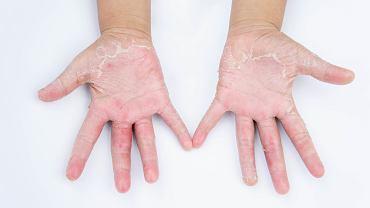 Ostre kontaktowe zapalenie skóry objawia się zmianami w postaci obrzęku, rumienia oraz pęcherzyków z surowiczą treścią. Przewlekłe kontaktowe zapalenie skóry pojawia się w wyniku częstego kontaktu skóry z czynnikami uczulającymi. Alergia manifestuje się pękaniem, suchością i złuszczaniem skóry.