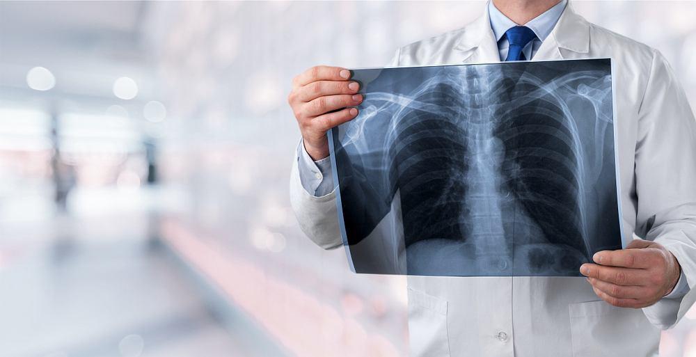 Koronawirus - płuca