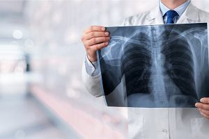 U poważnie chorych na COVID-19 płuca są uszkadzane w bardzo różnym stopniu. Lekarze zastanawiają się nad przyczynami