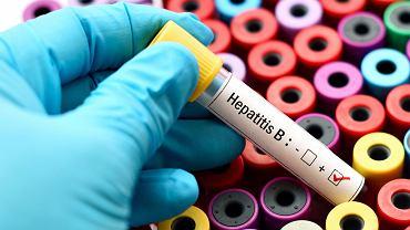 Żółtaczka typu B (WZWB), czyli wirusowe zapalenie wątroby typu B, jest chorobą wątroby, wywołaną przez wirusy HBV (hepatitis B virus)