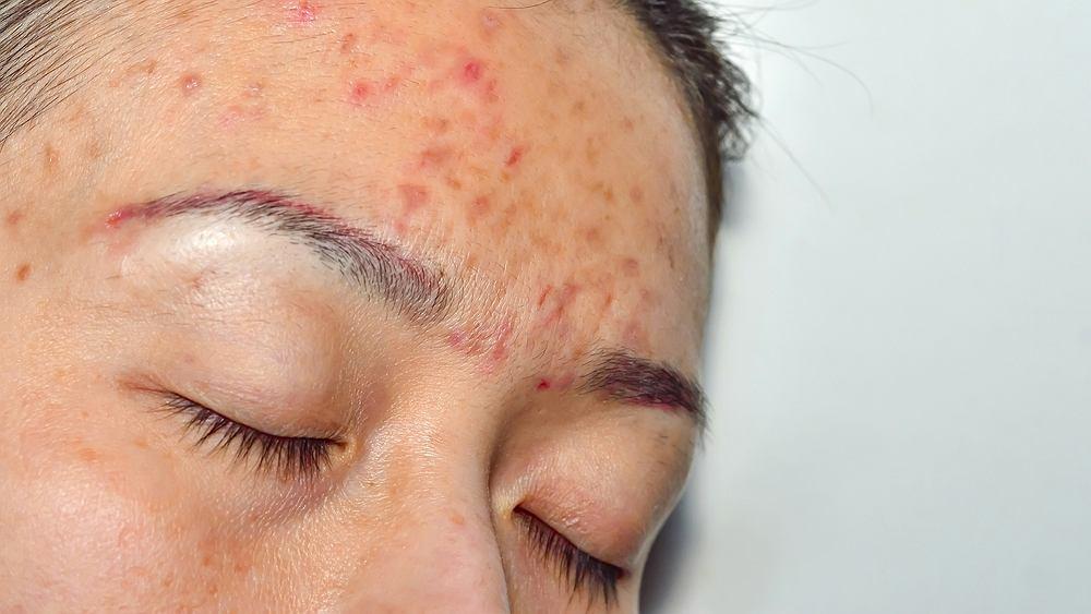 Trądzik różowaty to choroba skórna, która objawia się nieestetycznymi, czerwonymi plamami na skórze twarzy