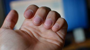 Obgryzanie paznokci może prowadzić do różnego rodzaju infekcji