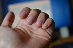 Czym może grozić obgryzanie paznokci? 57-latek prawie zmarł z powodu sepsy