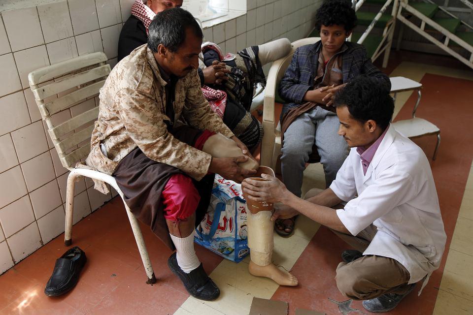 Szpital w Sanie, stolicy Jemenu. Lekarz zakłada ofierze wybuchu miny protezę nogi