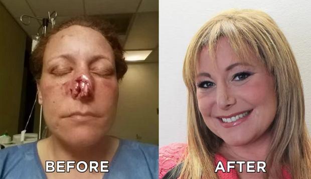 Zdjęcie przed i po operacji plastycznej nosa