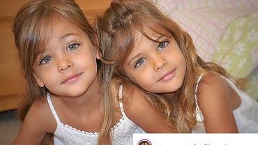 Te siostry nazwano 'najpiękniejszymi bliźniaczkami świata'. Jak wyglądają teraz mając 10 lat?