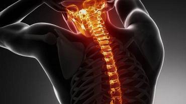 Choroba Scheuermanna to jedno ze schorzeń kręgosłupa. Przyczyny jej występowania nie są do końca znane. Część badaczy uważa, że ma ona podłoże genetyczne