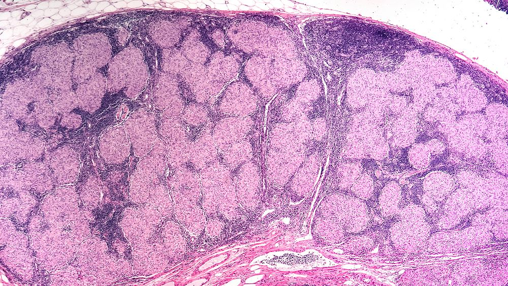 Sarkoidoza to choroba układu odpornościowego polegająca na powstawaniu wewnątrz różnych narządów tak zwanych ziarniaków, czyli grudek zapalnych o niewielkich rozmiarach. Na zdjęciu powiększony węzeł chłonny z ziarniakami sarkoidozy.