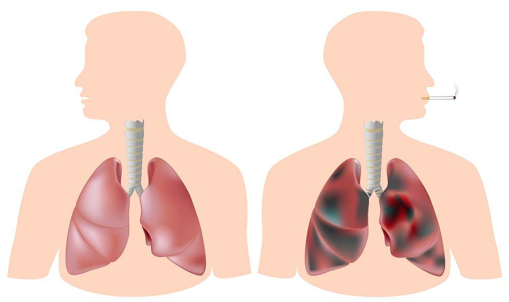 Płuca palacza po roku regularnego palenia w niczym nie przypominają już zdrowego organu. Stają się całkowicie czarne - jest to efekt działania substancji smolistych, obecnych w dymie papierosowym.