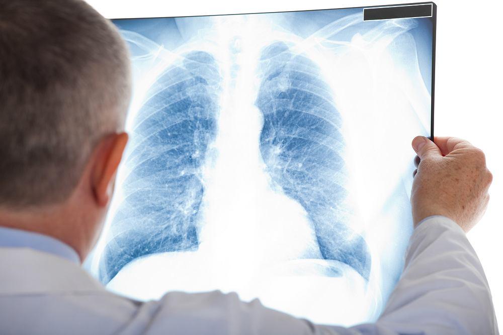 Zator płucny (zator tętnicy płucnej, zatorowość płucna) to powikłanie będące następstwem zaczopowanie światła naczyń płucnych 'materiałem zatorowym' (najczęściej skrzepnięta krew), prowadzące do niewydolności krążenia, dysfunkcji części płuc, a czasem do ich martwicy.
