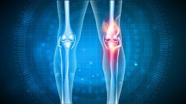 Chondromalacja objawia się silnym bólem w kolanie