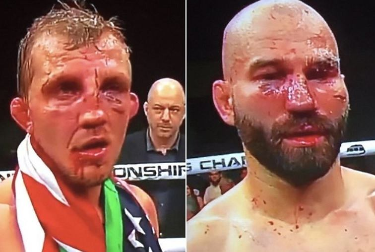 Lobov po walce na gali Bare Knuckle Fighting Championship