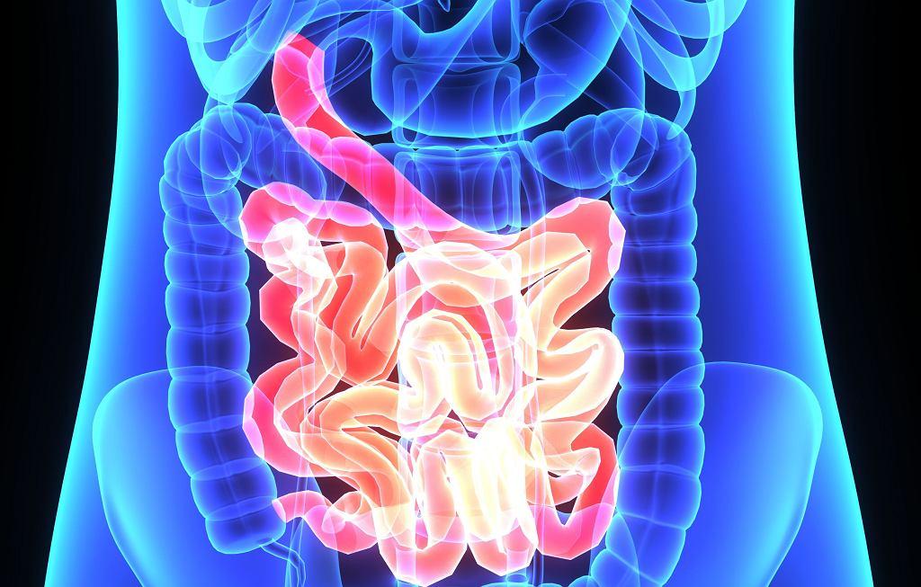 Obecność pasm włóknistych (Ladda) może sprzyjać niedrożności jelita cienkiego