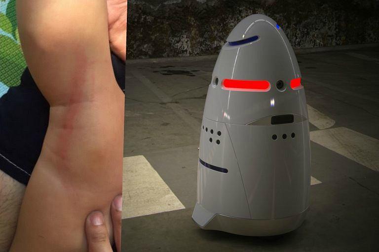 Robot zaatakował półtoraroczne dziecko