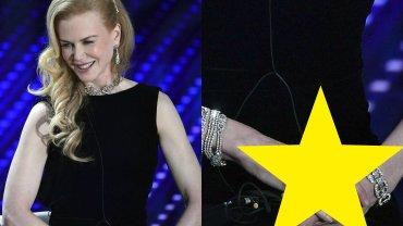 """Nicole Kidman gościła na Festiwalu Muzycznym Sanremo we Włoszech, a uwaga mediów znów skupiła się na jej gładkim licu. """"Nuda"""" - pomyślicie pewnie. A jednak tym razem aktorka miała CAŁKIEM NOWĄ TWARZ. Jeden z serwisów porównał też jej cerę z dłońmi."""