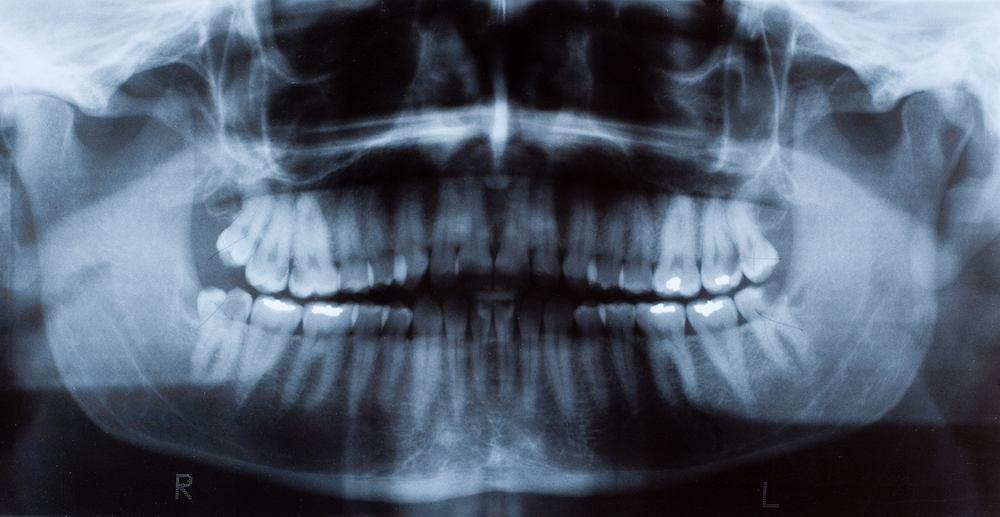 Siedmiolatek miał obrzęk policzka. W szpitalu okazało się, że ma 526 zębów.