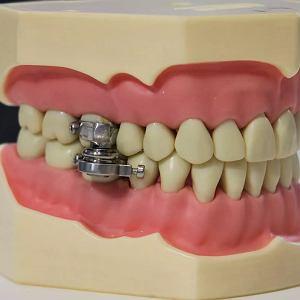 Urządzenie do odchudzania się - DentalSlim Diet Control