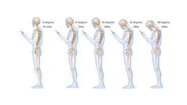Długotrwale utrzymywana nieprawidłowa pozycja ciała, powoduje bóle i zwyrodnienia.