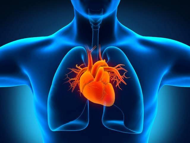 Tamponada serca powstaje zazwyczaj w skutek pęknięcia ściany komory w czasie zawału, zapalenia osierdzia lub urazu