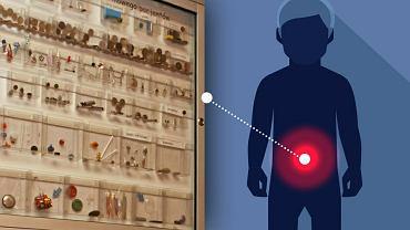Gwoździe, baterie, bombki choinkowe - bydgoscy lekarze wyciągnęli je z pacjentów i umieścili w gablocie