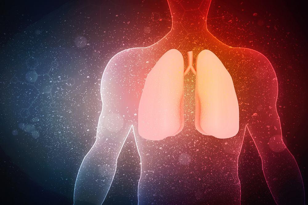 Ropne choroby płuc