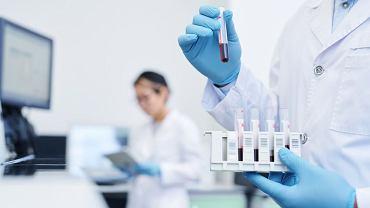 Morfologia dostarcza informacji o kondycji nie tylko układu krwionośnego, ale niemal o wszystkich narządach naszego organizmu