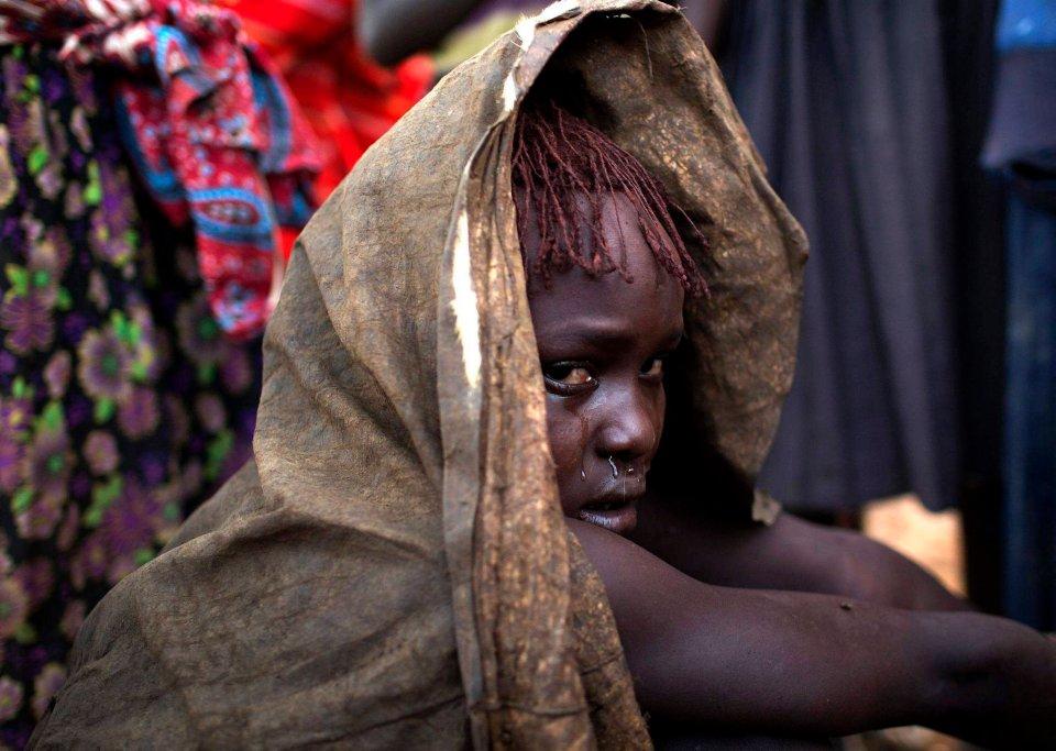Często obrzezanie kobiet wiązane jest z islamem. Tymczasem ta okrutna praktyka wynika z plemiennych tradycji zupełnie niezwiązanych z tą (a często również z żadną inną) religią. Np. w Kenii dominującą religią jest chrześcijaństwo, w Etiopii - judaizm. Praktykę tę stosowali także egipscy koptowie, do niedawna legalnie. Na zdjęciu: dziewczyna płacze po przejściu rytualnego obrzezania